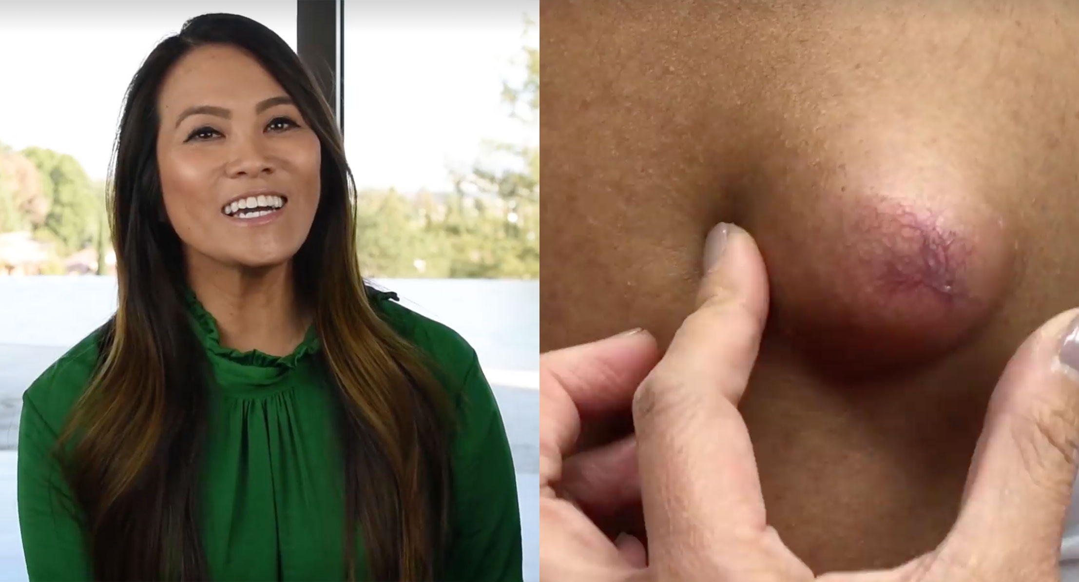 Dr  Pimple Popper Is Set To Get Her Own TV Special on TLC - NYLON
